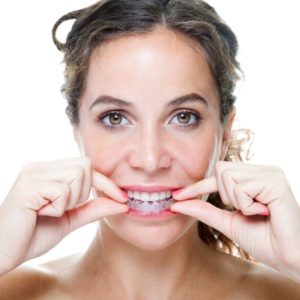 woman placing clear aligners in mouth
